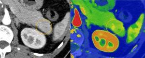 Spectral CT 7500 pancreatic lesion comparison Image Philips